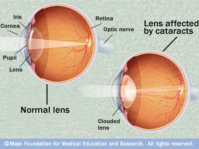 Cataracts Diagram
